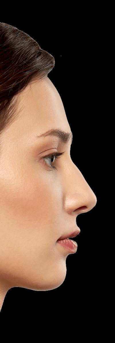 silicol-skin-woman